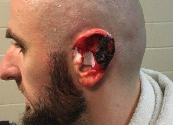 M.Gortato ausis atrodė štai taip (Instagram nuotr.)